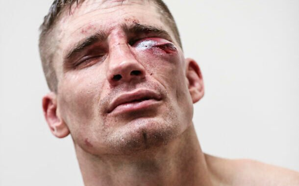 Image for Rico Verhoeven No Longer Recognized by Phone After Glory: Collision 3